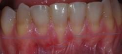 Vemos la diferencia de altura en los dientes inferiores