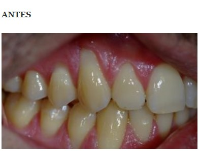 periodoncia 1 antes
